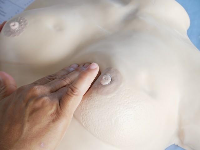характерные симптомы рака молочной железы на манекене