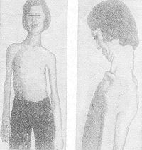 Энцефалит клещевой