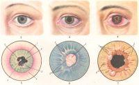 Иридоциклит - клиническая картина, лечение...