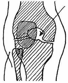 Костный дефект при гемофильном артрите